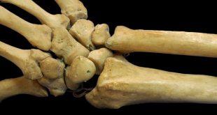 درمان پوکی استخوان