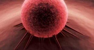 زمان غربالگری سکته و سرطان در سال 95