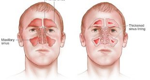 درمان سینوزیت با سیاه دانه